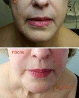 Rf Treatment For Face Before And After (8)