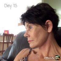 Rhytidectomy Day 15