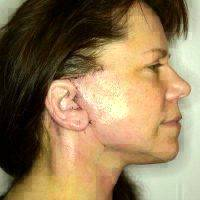 Scars After Mini-facelift (2)