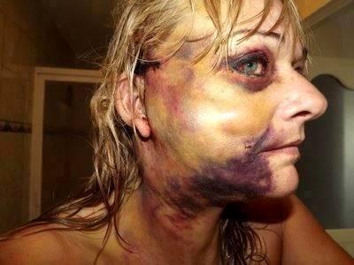 Nieto se desnuda bulgaria bar erotic