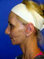 The New French Lift Tautens Sagging Skin With A Tiny Incision Behind The Ear