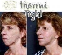 Thermitight For Face Before And After