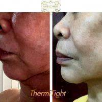 Thermo Tight Before And After