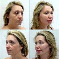 Thread Facelift Side Effects » Facelift: Info, Prices