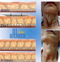 Ulthera Facelift Before And After Photo