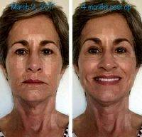 Weekend Facelift 4 Months Postop