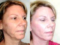 Weekend Facelift Before And After Photo