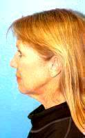 Weekend Facelift Is Generally More Common Than A Full Facelift