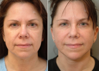 Weekend Facelift Pictures Before And After (1)