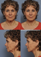 Weekend Facelift Pictures Before And After (2)