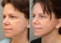 Weekend Facelift Pictures Before And After (3)