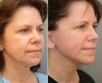 Weekend Facelift Before And After » Facelift: Info, Prices