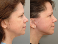 Weekend Facelift Pictures Before And After (6)