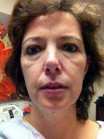 Weekend Facelift Surgery Is The Most Common Type Of Facelift Surgery Performed Today