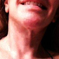 Weekend Lift Addresses The Jaw Line And The Lines From The Corners Of The Mouth To The Chin