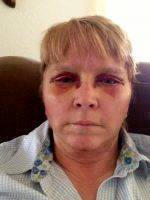 What Does A Facelift Hematoma Look Like Photo