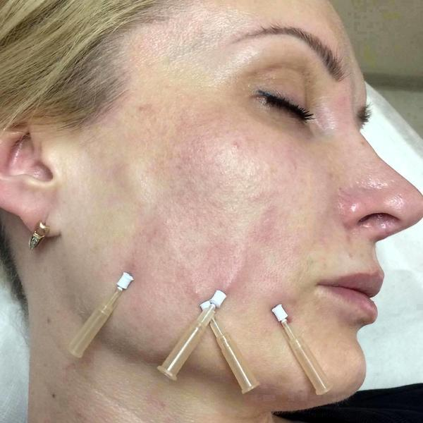 Thread Lift Pros And Cons » Facelift: Info, Prices, Photos, Reviews, Q&A
