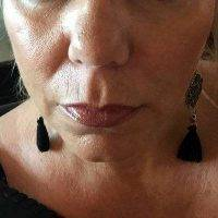 What Is A Weekend Facelift Before And After (2)