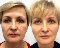 Y Lift Facelift Pictures Before And After