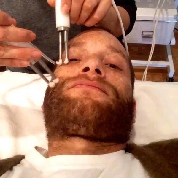 facial stimulation machine