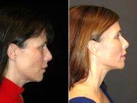 51 Year Old Female By Doctor Goesel Anson, MD, FACS, Las Vegas Plastic Surgeon