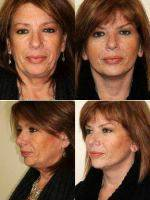 53 Year Old Female With Dr. Timothy Treece, MD, FACS, Columbus Plastic Surgeon