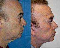 55-64 Year Old Man Treated With Facelift By Dr Elliot M. Heller, MD, New York Facial Plastic Surgeon