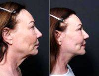 55-64 Year Old Woman Treated With Facelift By Dr Remus Repta, MD, Scottsdale Plastic Surgeon