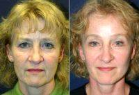 55-64 Year Old Woman Treated With Facelift By Dr Scott D. Holley, MD, FACS, Portage Plastic Surgeon