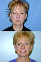 55 Year Old Woman Who Was Unhappy With Her Appearance By Doctor Lewis Ladocsi, MD, FACS, Richmond Plastic Surgeon