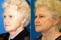 Doctor George Yang, MD, New York Facial Plastic Surgeon - Lower Facelift And Necklift With Platysmaplasty