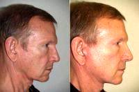 Doctor Jeffrey Epstein, MD, FACS, Miami Facial Plastic Surgeon - Facelift With Necklift