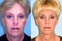 Doctor John Cassel, MD, Miami Plastic Surgeon Before And After