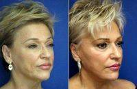 Doctor Joseph A. Russo, MD, Newton Plastic Surgeon Facelift