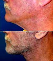 Dr. Sanaz Harirchian, MD, Houston Facial Plastic Surgeon - 66 Year Old Male 2 Weeks After Facelift & Necklift
