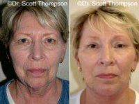 Dr. Scott K. Thompson, MD, Salt Lake City Facial Plastic Surgeon - 66 Year Old Female With Facelift