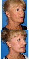 Dr. Stephen Prendiville, MD, Fort Myers Facial Plastic Surgeon 65-74 Year Old Woman Treated With Facelift