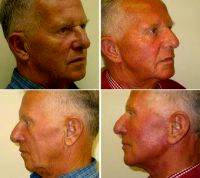 Dr. Thomas Buonassisi, MD, Vancouver Facial Plastic Surgeon - Facelift Before & After Photos