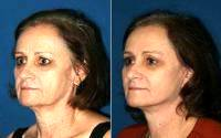 Face And Neck Lift By Dr. Gregory Park, MD, San Diego Plastic Surgeon