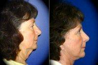 Face Lift With Dr. Martin O'Toole, MD, FACS, Los Angeles Plastic Surgeon