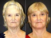 Face Neck Lift Patient - Before & After Photos. By Doctor Leonard Hochstein, MD, Miami Plastic Surgeon