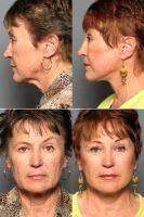 Facelift & Brow Lift With Dr Adam D. Stein, MD, Raleigh-Durham Facial Plastic Surgeon