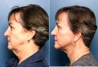 Facelift By Doctor Adam D. Stein, MD, Raleigh-Durham Facial Plastic Surgeon