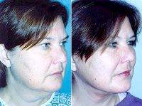 Facelift By Doctor Andrew Miller, MD, Edison Facial Plastic Surgeon