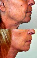 Facelift By Doctor Barry L. Eppley, MD, DMD, Indianapolis Plastic Surgeon