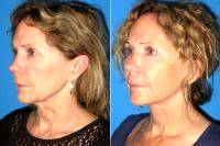 Facelift By Dr Alyson Wells, MD, FACS, Baltimore Plastic Surgeon