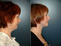 Facelift By Dr. Richard P. Rand, MD, FACS, Seattle Plastic Surgeon