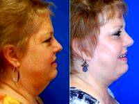 Facelift With An Extended SMAS Flap By Dr. Randy Proffitt, MD, Mobile Plastic Surgeon