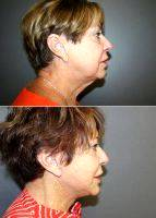 Facelift With Dr Shelby Brantley, MD, Jackson Plastic Surgeon