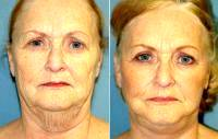 Facelift With Dr Stephen E. Zucker, MD, South Bend Plastic Surgeon